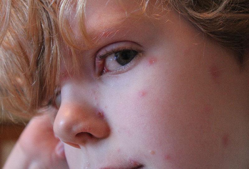 Chickenpox2
